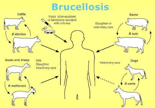 بیماری تب مالت یا بروسلوز