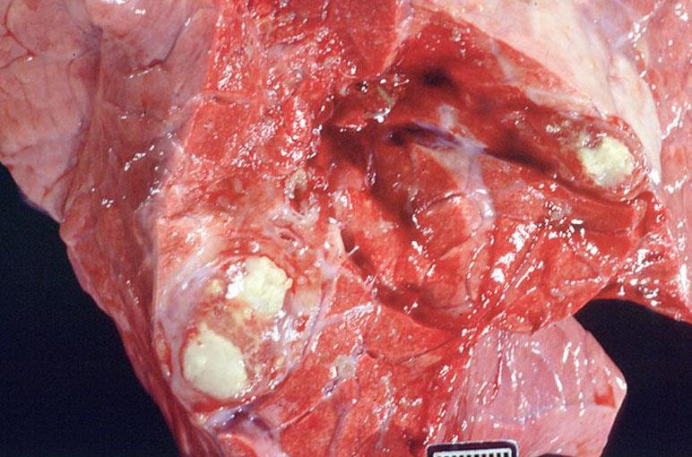 بیماری سل گاوی (توبرکولوزیس)