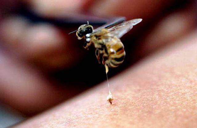 سم زنبور جایگزین آنتیبیوتیک