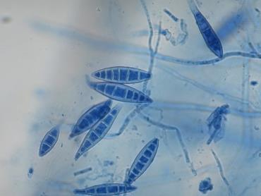ماکروکونیدی – میکروسپوروم کنیس