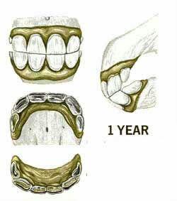 دندان اسب در یک سالگی
