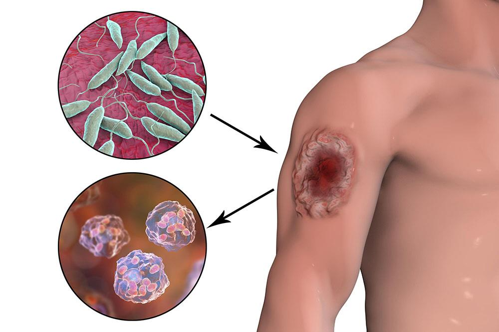 بیماری لیشمانیوز (Leishmaniasis)