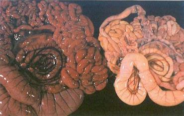 مقایسه رودههای مبتلا به اسهال کلیباسیلی و انتروتوکسمی