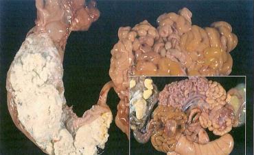 Enteric Colibacillosis