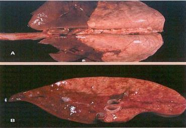 پنومونی آتیپیک