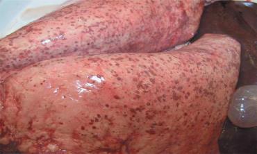 آلودگی شدید ریه به مولریوس کاپیلاریس