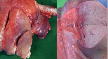 توموری شدن بخشی از ریه