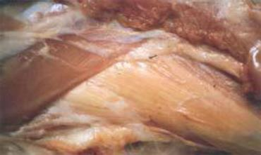عضله ران بره مبتلا به بیماری عضله سفید