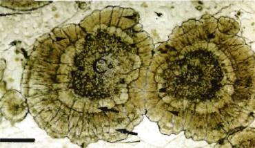 تصویر لام مرطوب یک لکه سفید باکتریائی