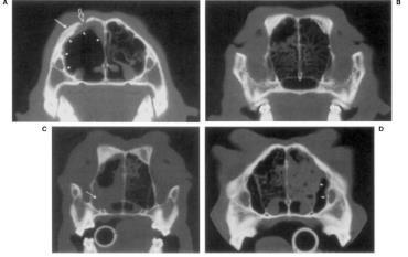 استفاده از سیتی اسکن جهت تشخیص آسپرژیلوز بینی