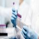 چگونه درصد خطای تست های تشخیصی را پایین آوریم