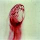 درمان چند بیماری خود ایمنی انسان با پپتید نوعی انگل کرمی مشترک انسان و دام