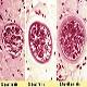 بیماری سارکوسیست (Sarcocystis)