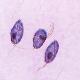 بررسی امکان استفاده از تخم مرغ جنین دار به عنوان محیط کشت برای رشد تریکوموناس گالین